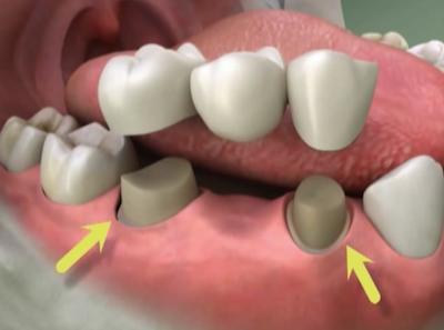 Протезирование зубов, изготовление протезов